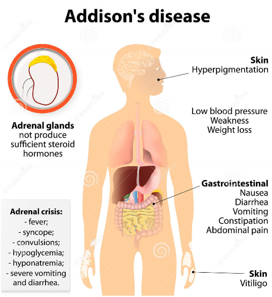 adrenal fatigue vs. addison's disease – what is the difference, Human Body